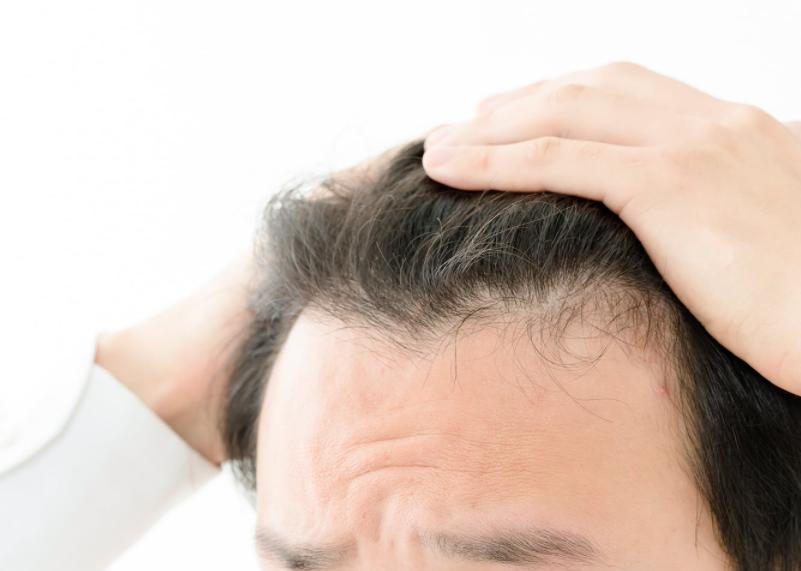 活性酸素が発毛を阻害するメカニズムとは?