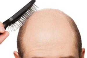さいごに|鉄分不足を解消して発毛対策しよう!