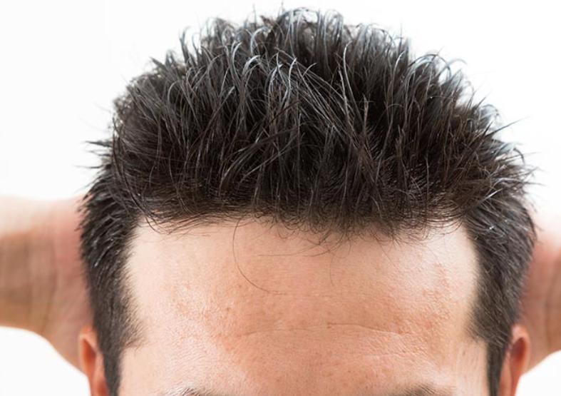 生え際が発毛しにくい原因とは?考えられる理由は2つ!