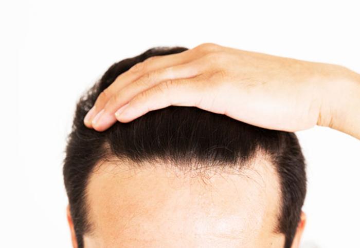 生え際の発毛が期待できる対策は3つ!