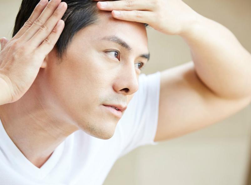 さいごに|生え際の発毛を諦めないで!適切な対処で改善しよう!