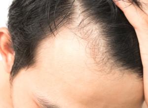 発毛における手遅れになるのはどういう状態?