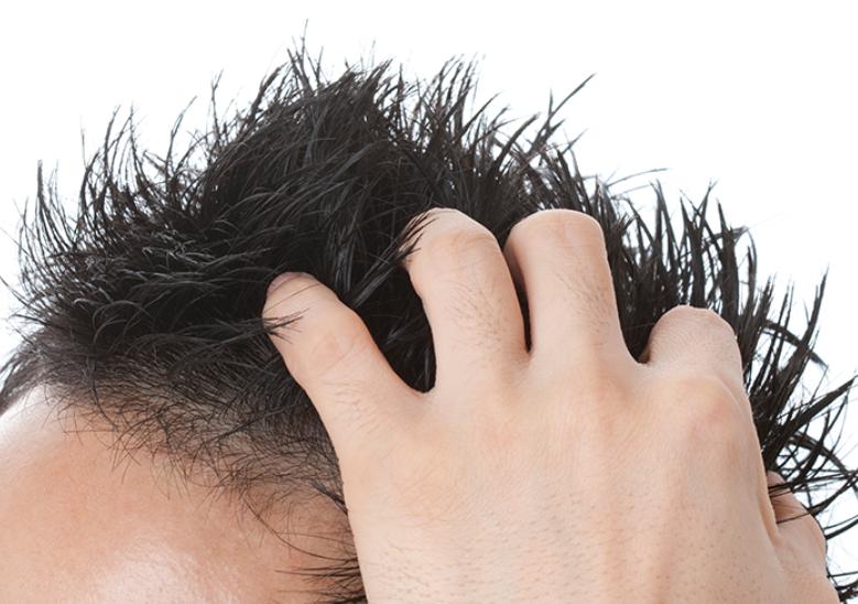 手遅れの状態になる前に!発毛を諦める前に考えるべきポイントとは?