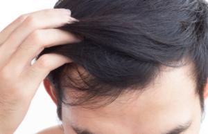 馬油ってなに?発毛に対する効果を解説!
