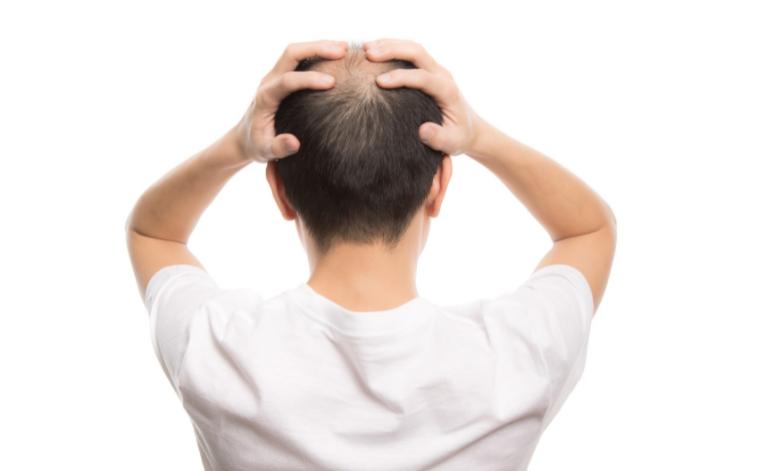 坊主にすると髪の毛が太くなるのは都市伝説!正しい発毛常識とは?