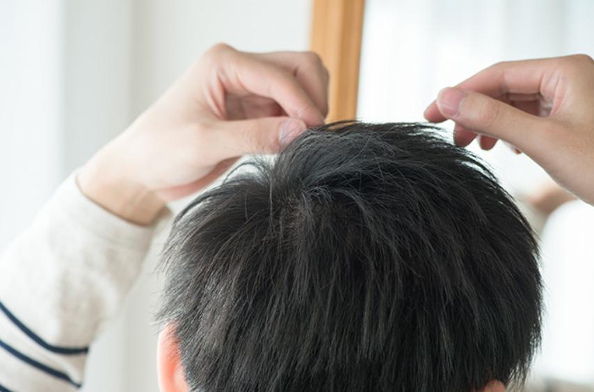 頭蓋骨と発毛との関係性とは?