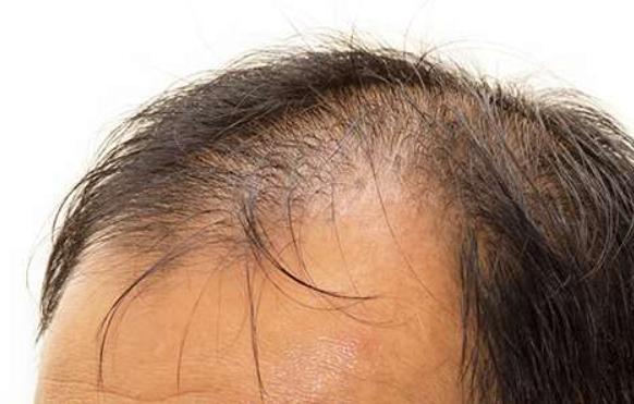 ルミガンとはなに?発毛との関係は?