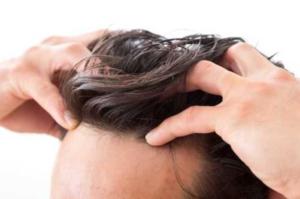 リポポリサッカライドで発毛が期待できる!?効果効能を解説!