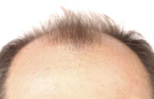 さいごに|発毛には頭皮環境が大切!不飽和脂肪酸でメンテナンス!