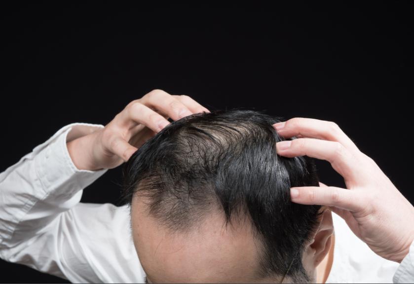 不飽和脂肪酸とは?発毛との関係性を知ろう!