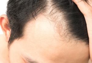 リポポリサッカライドとミノキシジルの発毛効果に差はある?