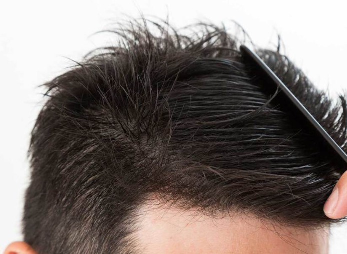 ミネラルとは?発毛によい効果のある成分を解説