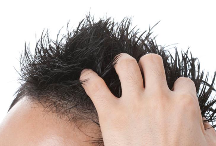さいごに 発毛対策にリポポリサッカライドは効果的!