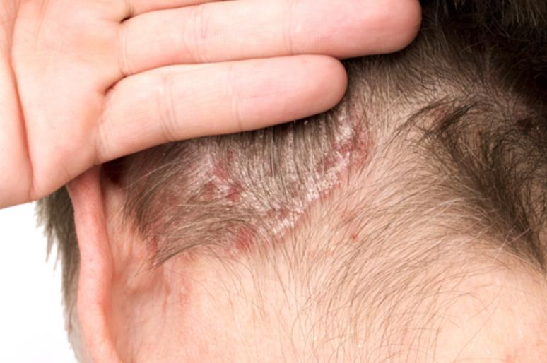 マラセチア菌が発毛に与える影響とは?