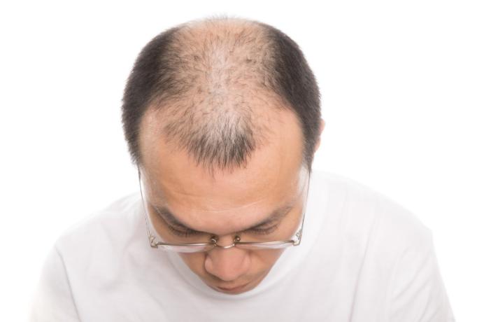 活性酸素とは?発毛に与える影響を解説!
