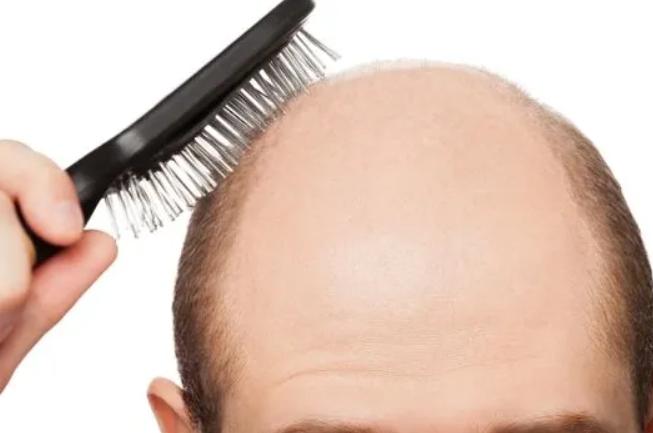 【結論】頭皮を叩くと発毛するのはウソ!その理由と発毛のメカニズムを解説!