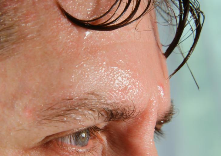 ただし汗そのものは発毛に悪影響!デメリットと対策を解説
