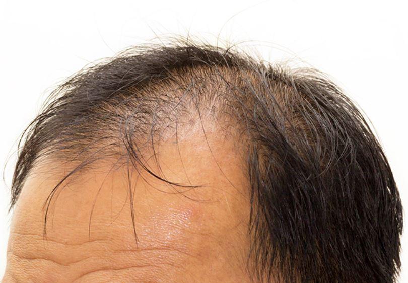 さいごに 発毛のためにヘイフリックの限界を意識しよう!